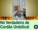 NÓ VERDADEIRO DE CORDÃO UMBILICAL