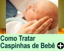 Como Tratar as Caspinhas do Bebê