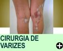 DICAS APÓS A CIRURGIA DE VARIZES