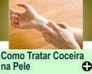 COMO TRATAR COCEIRA INTENSA NA PELE